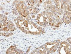 ZER1 Antibody (PA5-21807)