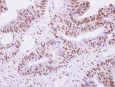 SEPHS1 Antibody (PA5-21837)