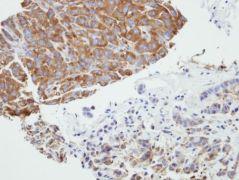 PRPSAP2 Antibody (PA5-21847)
