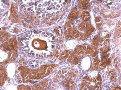 NLK Antibody (PA5-21877)