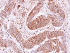 VPS35 Antibody (PA5-21898)