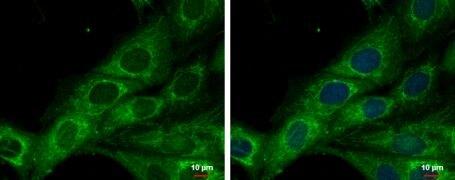 COX6A2 Antibody (PA5-21922)