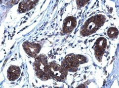 RANKL Antibody (PA5-21951)