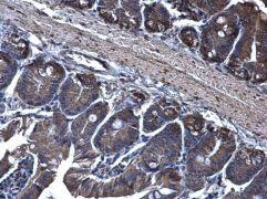 TRAM1 Antibody (PA5-21955)