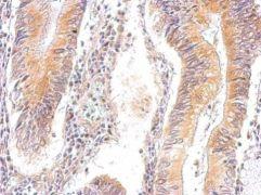 AMPK gamma-2 Antibody (PA5-21998)