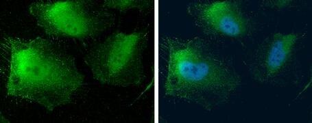 MTAP Antibody (PA5-22000)