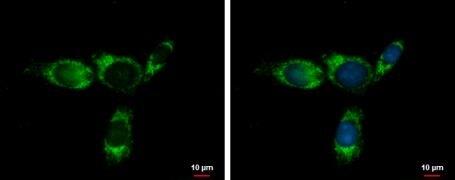 GLDC Antibody (PA5-22102)