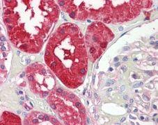 Aminoacylase Antibody (PA5-22107)