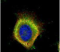 FASN Antibody (PA5-22111)