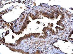 MHC II HLA-DR Antibody (PA5-22113)