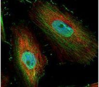 BIVM Antibody (PA5-22115)