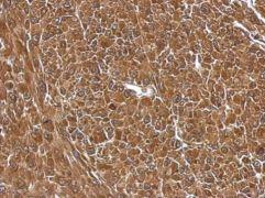 eIF5A2 Antibody (PA5-22118)