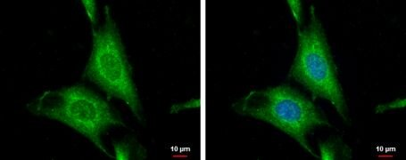 WNT10A Antibody (PA5-22155)