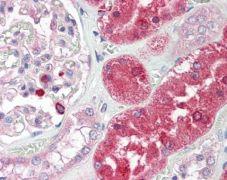 ENTPD5 Antibody (PA5-22247)