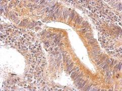 ENO3 Antibody (PA5-22275)