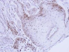 PSMB8 Antibody (PA5-22290)