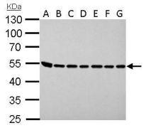 ASL Antibody (PA5-22300)