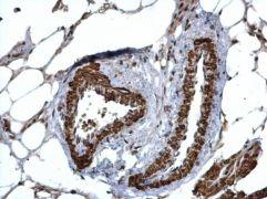 HUS1 Antibody (PA5-22306)