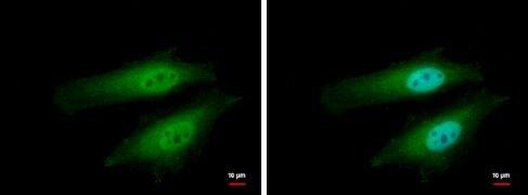 HNF1A Antibody (PA5-22310)