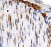 OS9 Antibody (PA5-22781)