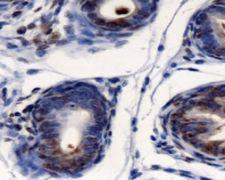 AGR2 Antibody (PA5-22963)