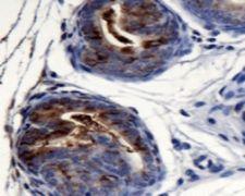 AGR2 Antibody (PA5-22964)