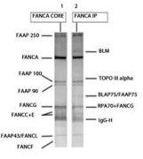 FANCA Antibody (PA5-22986)