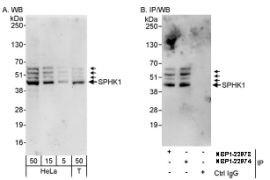 SPHK1 Antibody (PA5-22994)