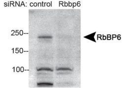 RBBP6 Antibody (PA5-23054)