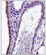 CX3CL1 Antibody (PA5-23062)