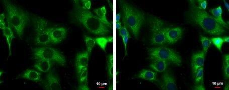 ACADM Antibody (PA5-27080)