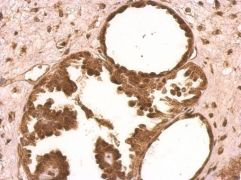 XLF Antibody (PA5-27102)