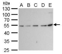 beta Tubulin 2 Antibody (PA5-27108)