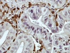 DAB2 Antibody (PA5-27130)