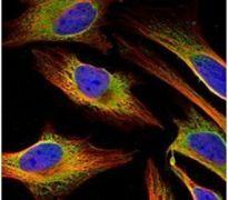 ACSL4 Antibody (PA5-27137)