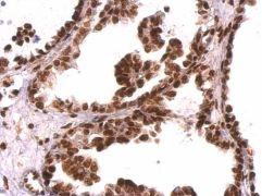 GRB2 Antibody (PA5-27151)