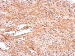DRD1 Antibody (PA5-27172)