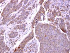 CXCR1 Antibody (PA5-27184)