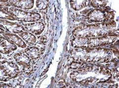 SOCS1 Antibody (PA5-27239)