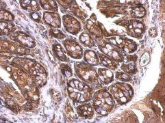 14-3-3 zeta Antibody (PA5-27317)