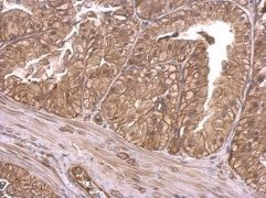 INSR Antibody (PA5-27334)