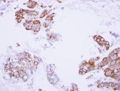 Maspin Antibody (PA5-27382)