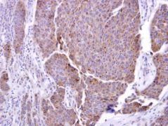 ADAM17 Antibody (PA5-27395)