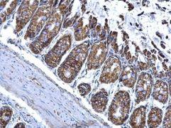 ALDH2 Antibody (PA5-27414)