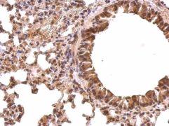 PABP Antibody (PA5-27443)