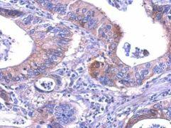 LDHB Antibody (PA5-27505)