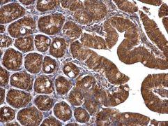 TUFM Antibody (PA5-27511)