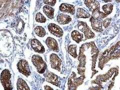 eIF3f Antibody (PA5-27585)