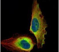 NFkB p65 Antibody (PA5-27617)