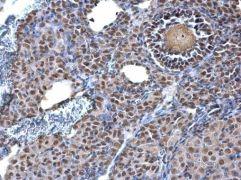 TRIM28 Antibody (PA5-27649)